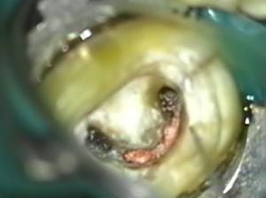 治療前 この隙間にある古いピンクの材料(根管充填剤)は肉眼では見えません
