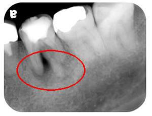 治療前 ①根の先の骨が大きく溶け、根尖病変ができている