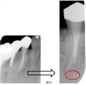 ④2つに分かれた根管の治療が完了し、根尖病変が治癒した状態