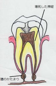 虫歯から入り込んだ細菌に神経が感染し壊死。歯痕の先には膿がたまっています