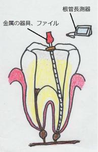 根管をみつけたら、根管長測定器を使って歯根の長さを測定します。続いて専用器具で歯髄を丁寧に取っていきます