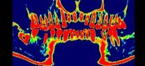 軟らかい顎の骨